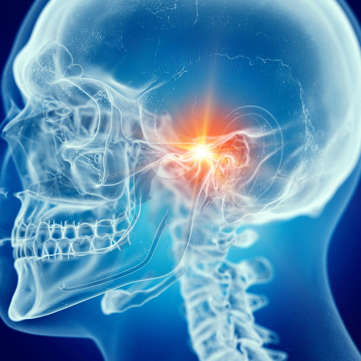 TMJ Diagnosis XRays, CT Scan, and MRI