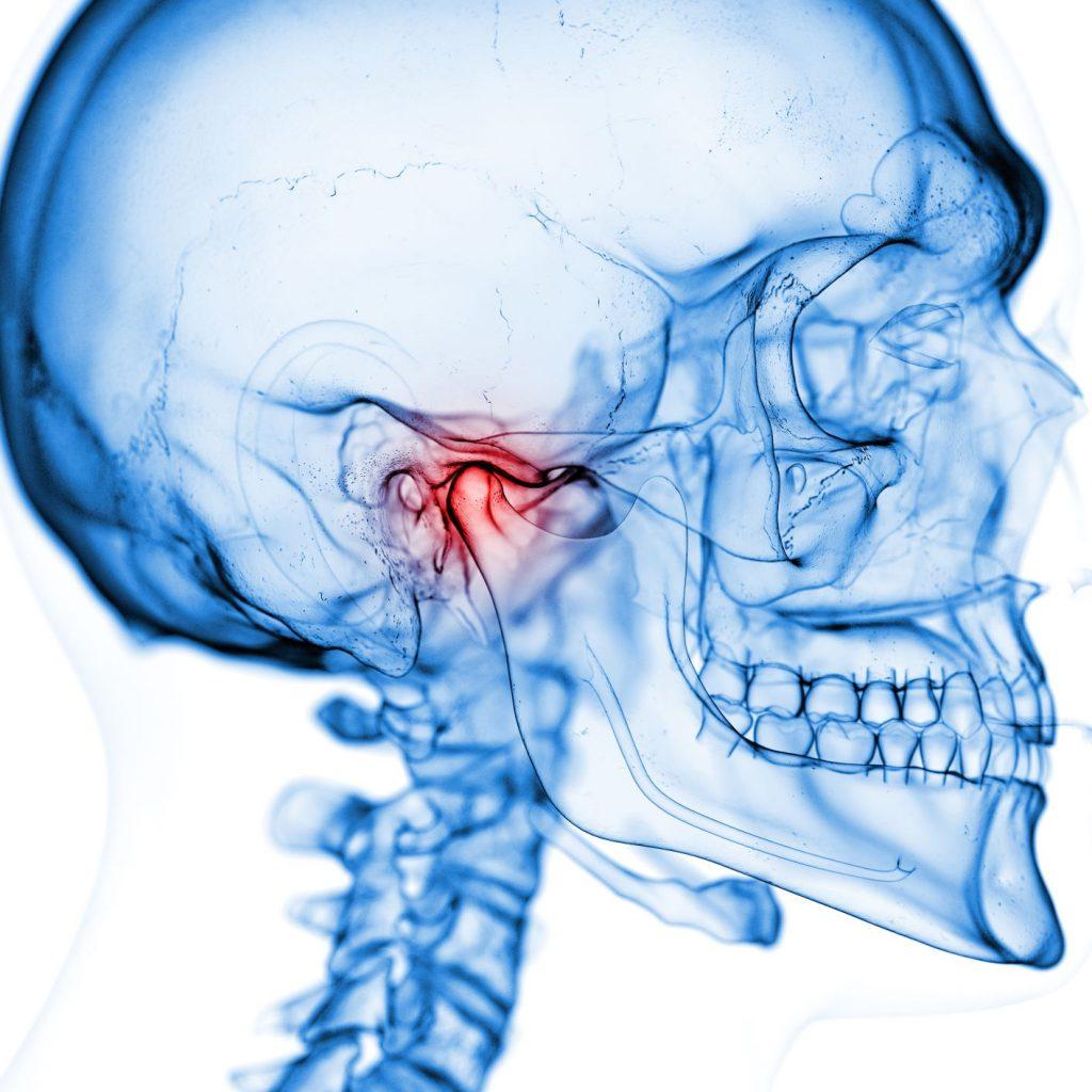 Diagnosing TMJ