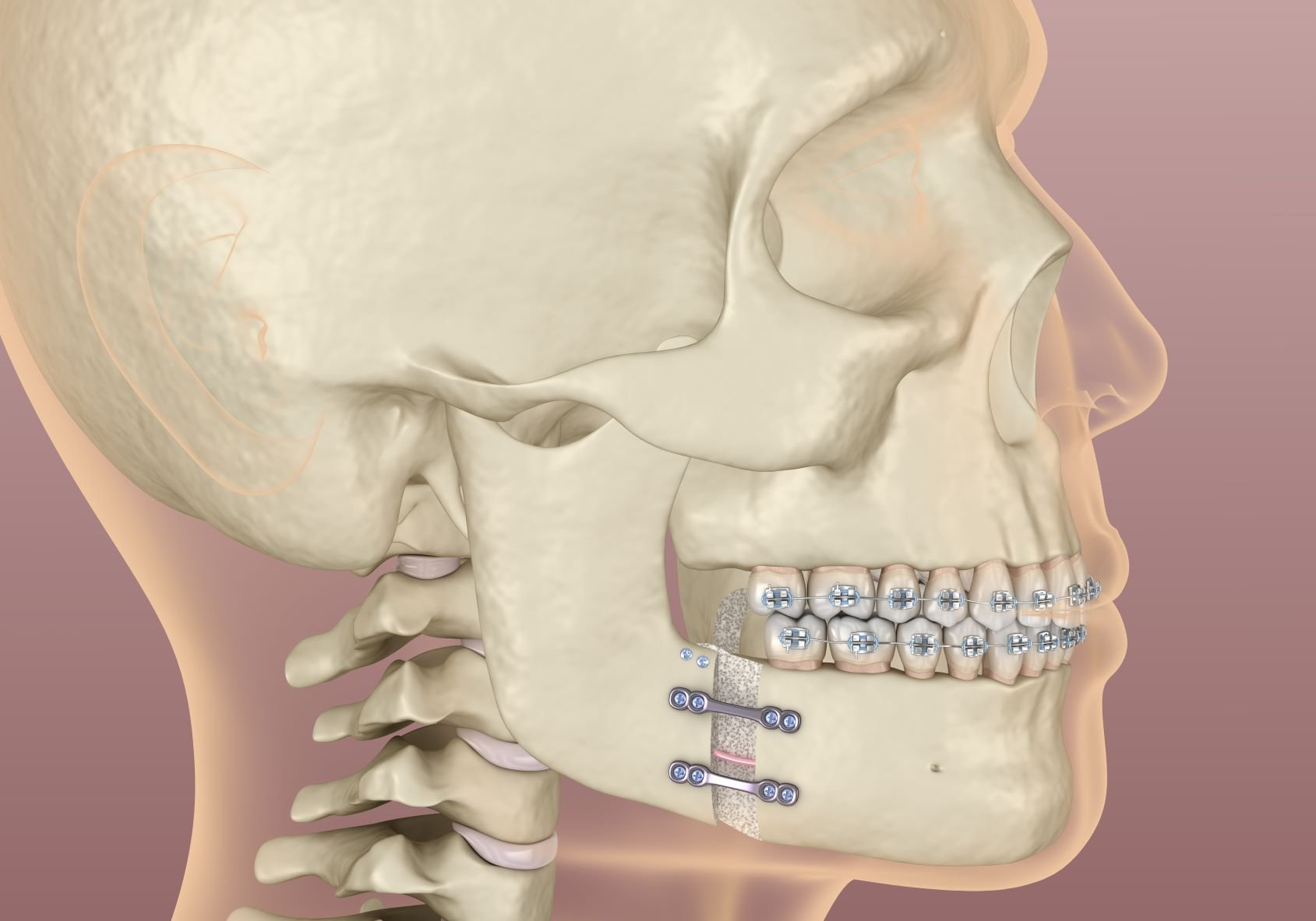 What are Jaw deformities?