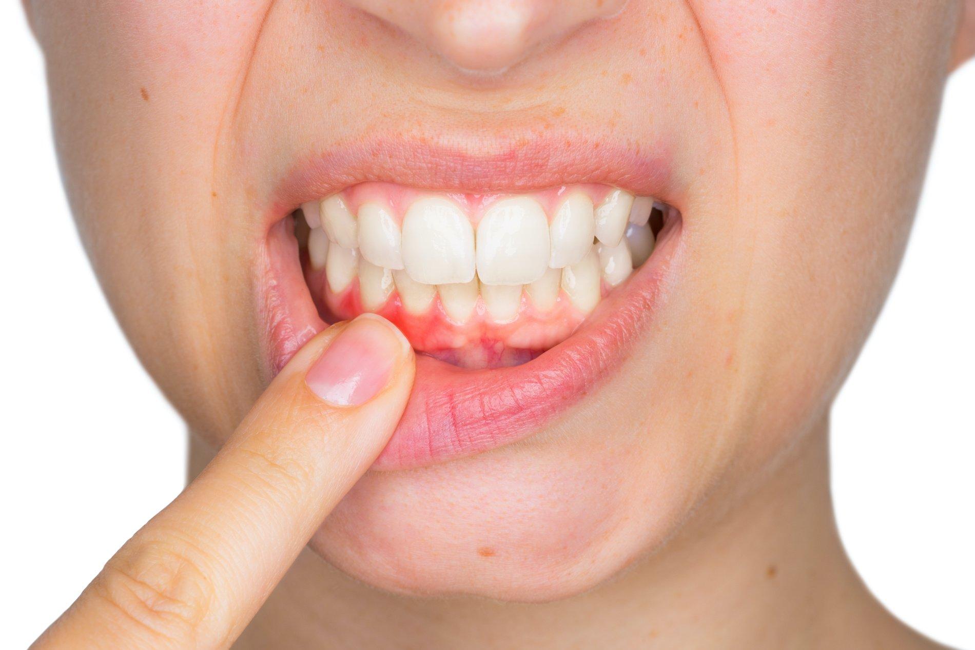 PRECiDENT - teeth & gums - bleeding gums