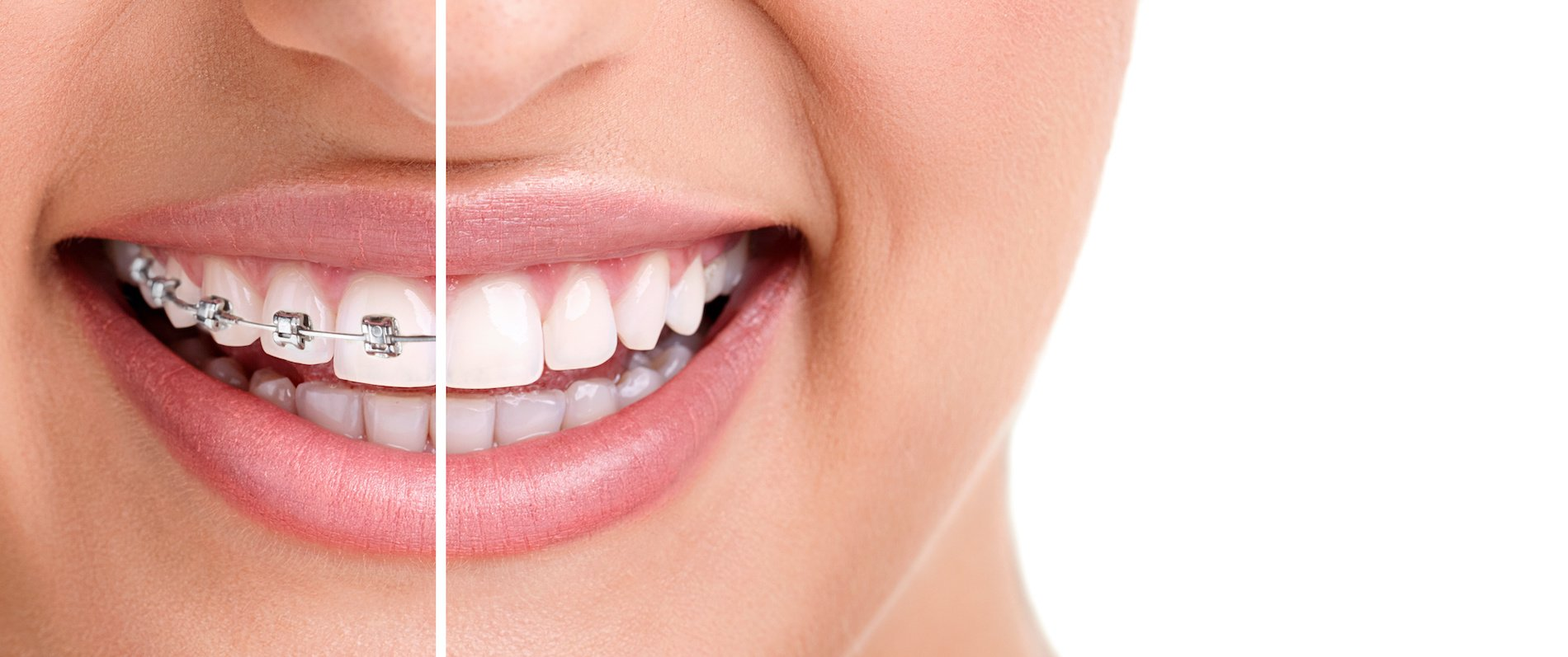 Orthodontics and Braces by PRECiDENT.health