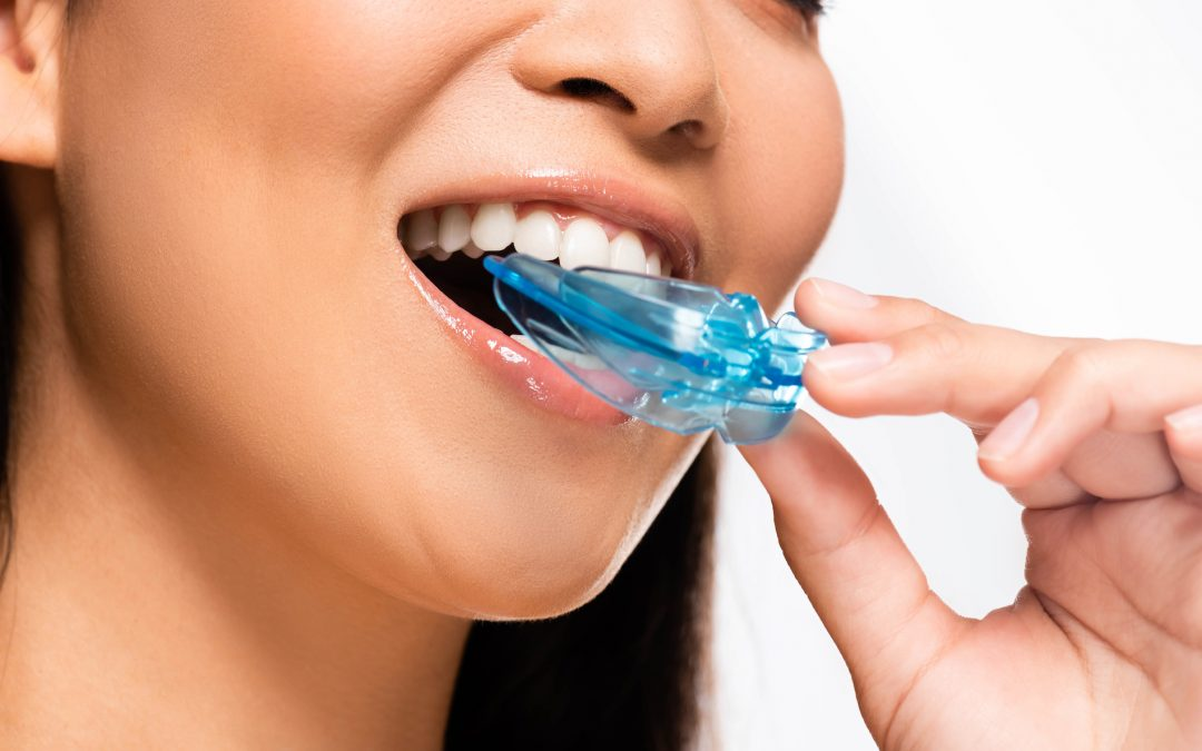 Everything You Need to Know About TMJ Mouth Guards