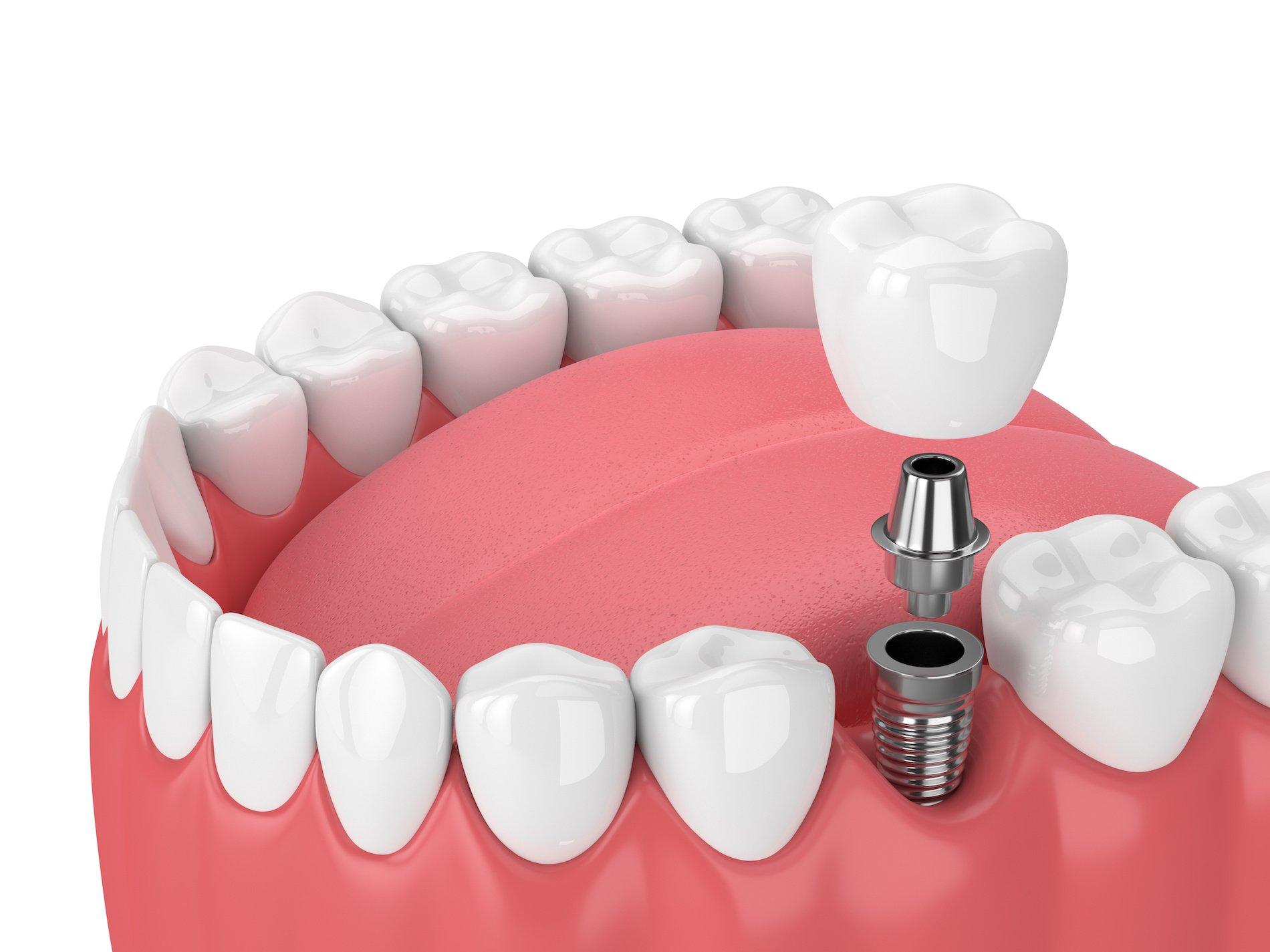 What Are Dental Implants PRECiDENT Center for Dental Medicine