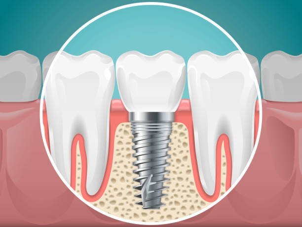 Pros and Cons of Dental Implants: Should I Get Them?