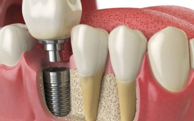 Curious About Dental Implants? Learn More About Them Here